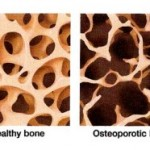 Causes-of-osteoporosis-300x186