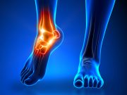 ankle-stock-photo